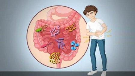 治疗直肠炎方法是什么